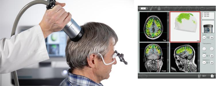 TPS - Demenz - Alzheimer - Dr. Baltin